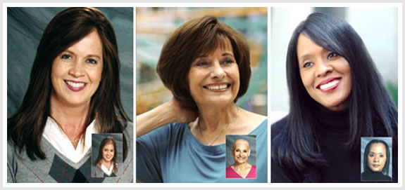 Hair Replacement for Women NH